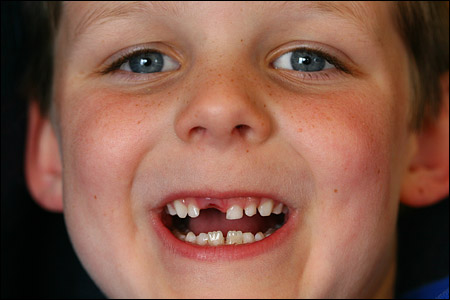 max_missing_tooth